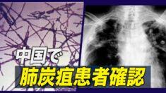 中国で肺炭疽患者1人確認  2011年以降初めて