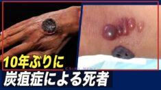 中国 10年ぶりに炭疽症による死者